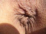 This is a picture of my old but hole. You can barely see the little swelling to the bottom left. This where I tore. Thanks to my neighbor, she loaned me her inflatable penis that went in easily and then little by little over a couple weeks of using it eve